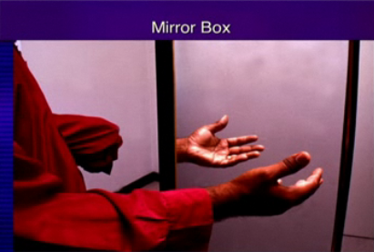 A Ghost Foot, A Phantom Leg And Frozen Fingers Treated By Mirror Therapy